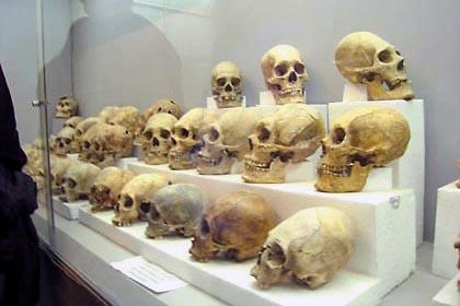 Einige Totenschädel mit Verformungen aus Tiwanaku